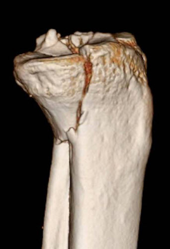 Figure B: Posteromedial tibial plateau fracture 3D CT scan