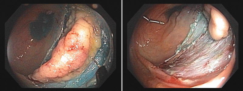 A colon mass lesion in the process of being resected by ESD.