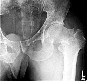 xray image of hip joint fracture