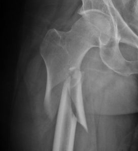 x-ray image of hip fracture