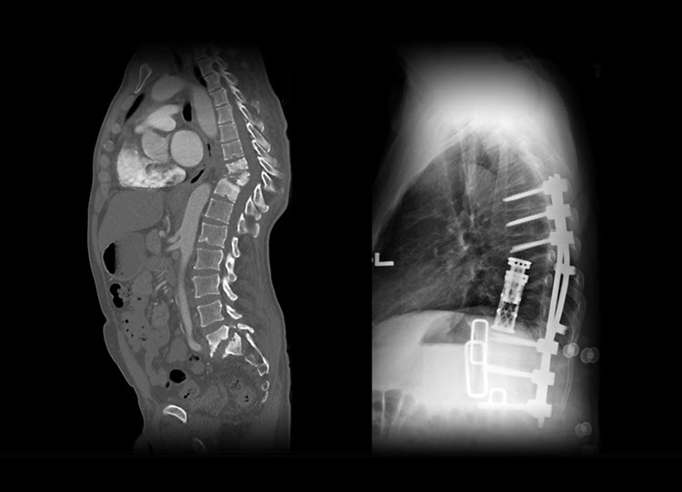 X-ray of spine surgery comparing pre-operative and post-operative images following costotransversectomy.