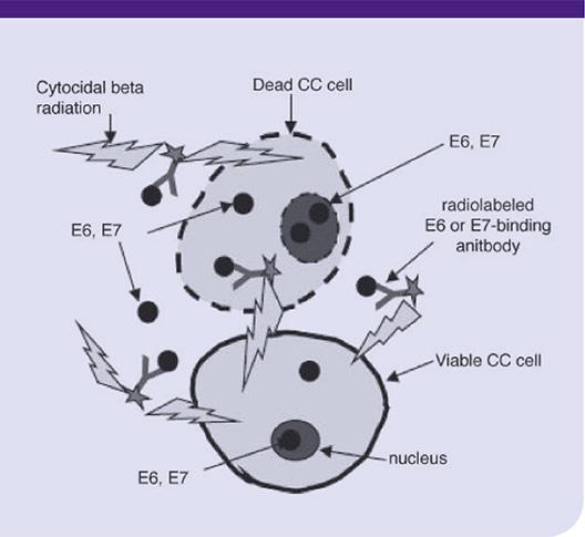 Cervical Cancer Mechanism
