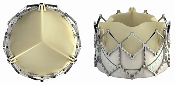 An image of SAPIEN-XT-Valves. Pictured left: top view of SAPIEN-XT-Valve. Pictured Right: Front view of SAPIEN-XT-Valve.
