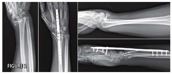 Internal Distraction Plating of Complex Distal Radius Fractures