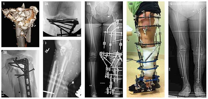 Photos and xrays of a complex limb reconstruction. FIGURE 1: Patient is a healthy female; mother of two. Three-dimensional CT scan shows highly comminuted traumatic injury to left proximal tibia. FIGURES 2A and B: Following multiple debridements, an attempt was made to reconstruct the proximal tibia and close the wound. FIGURE 3: Massive post-operative infection led to removal of all infected hardware, soft tissue and bone; bone defects totaled 11 centimeters. Antibiotic beads were placed into the wound area. FIGURES 4 and B: The Ilizarov technique and Taylor spatial frame were used for six months to heal the bone defects; the left knee joint was fused, resulting in a non-bending knee. FIGURE 5: An intermedullary nail was passed down through the bone for the final stage of bone-defect healing. The patient has recovered well with no pain, no use of ambulatory aids, and was able to resume most activities of daily living, including driving. Stair climbing and certain sitting situations remain a challenge.