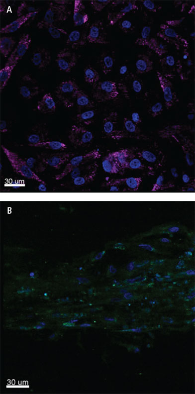 Isolated posterior tibial tendon-derived stem cells (TSCs) from diseased tenopathic tendon.