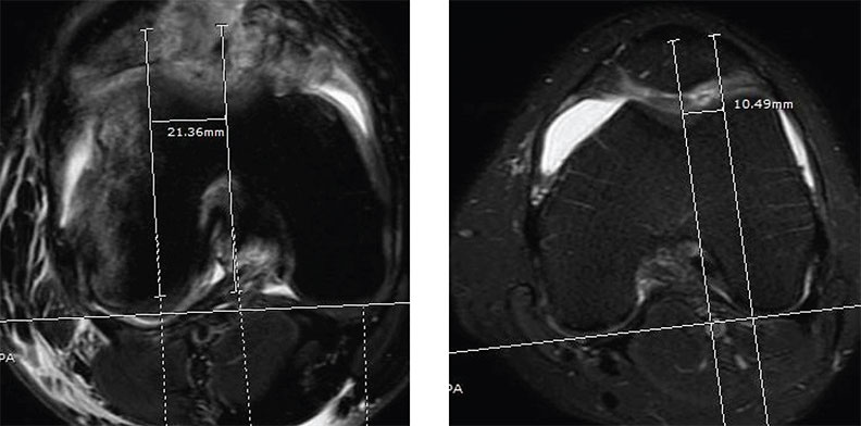Image of two separate xrays depicting the analysis of MRIs reveals increased TT-TG distance of 21.36 mm in a patient with repeated patellar dislocation (left), compared to TT-TG distance of 10.49 mm in a patient without patellar dislocation (right). The two halves of the image show MRI scans, with the parts of the body visible in light colors on a dark background.