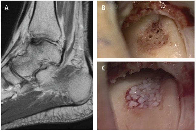 Case: 35-year-old female, recreational athlete with prior OCD of the talus. No history of trauma; had prior microfracture and scope at an outside institution. She continued to do poorly. MRI showed worsening of the lesion. Indicated for allograft cartilage grafting (DeNovo) with the addition. (A) T1 Sagital MRI demonstrating an OCD lesion of the talus. (B) The OCD lesion is visualized through a tibial plafondplasty. The lesion has been debrided to stable cartilage base; the subchondral bone has been stimulated. (C) The allograft cartilage is used to fill the lesion (DeNovo). Following graft implantation, fibrin glue will be applied and mesenchymal stem cells from the patient's bone marrow will be injected into the ankle onto the lesion.
