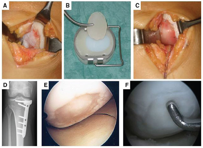 Images A–F: MACT of a large cartilage defect located at the medial condyle of a right knee in a 33-year-old patient. First the defect area was prepared until the defect edges were stable (A). Then the implant was cut into the right size (B), placed in the defect, and fixed with sutures (C). For successful cartilage therapy, it is necessary to address all comorbidities. Therefore, the patient had a high tibial osteotomy to correct the varus deformity (D). At this procedure 4 weeks after the MACT, the defect was evaluated arthroscopically. At this early stage of healing, a stable cell layer can be seen in the defect area (E). At the time of removal of the angular stable plate 1 year after MACT, the arthroscopic view of the medial condyle showed a completely filled defect with stable cartilage-like repair tissue (F).