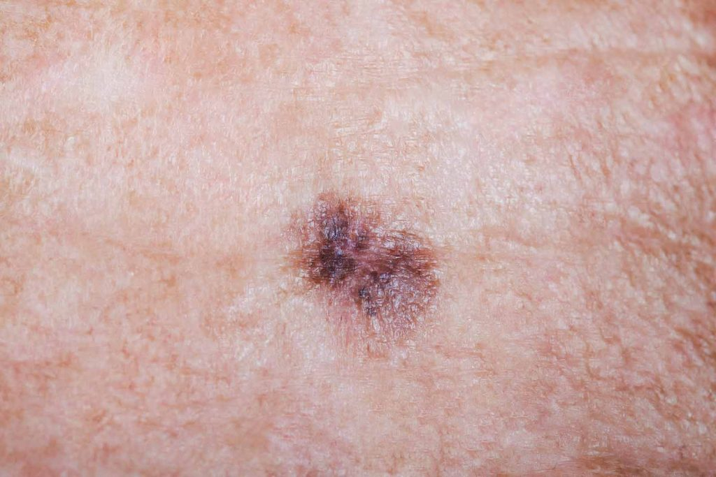 A close-up of a brown melanoma is shown on a man's forehead. There are two stitches holding the biopsy site together.