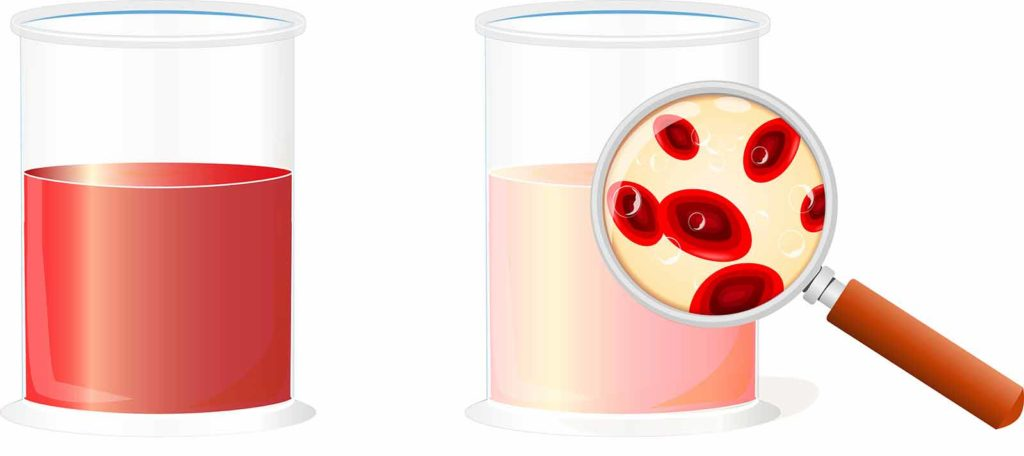 The image shows two beakers. The beaker on the left shows a urine specimen with visible (macroscopic) blood. The beaker on the right shows urine with microscopic blood not visible to the naked eye. The study seeks to evaluate patients with both types of blood in urine to determine the value of a biomarker in the evaluation.