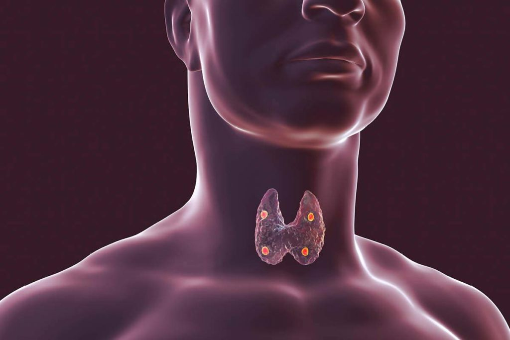 The image shows the thyroid gland and the four parathyroid glands, which are situated behind the thyroid gland. Credit: Getty Images
