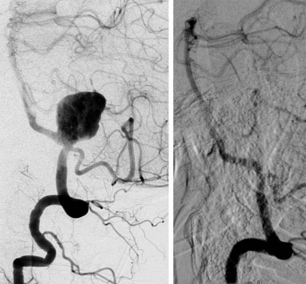The image shows an angiogram from before and after the embolization device is used showing a large anyeurysms before that is no longer there after.