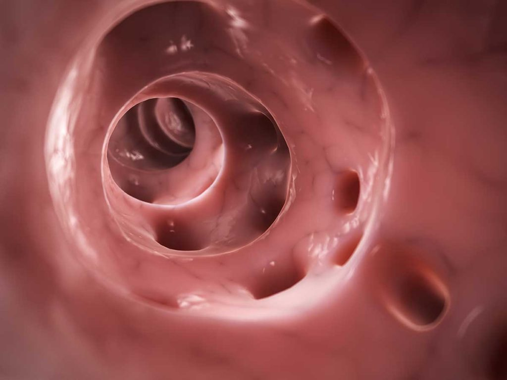 A 3-D rendered illustration of diverticulitis, showing multiple bulges in the colon wall.