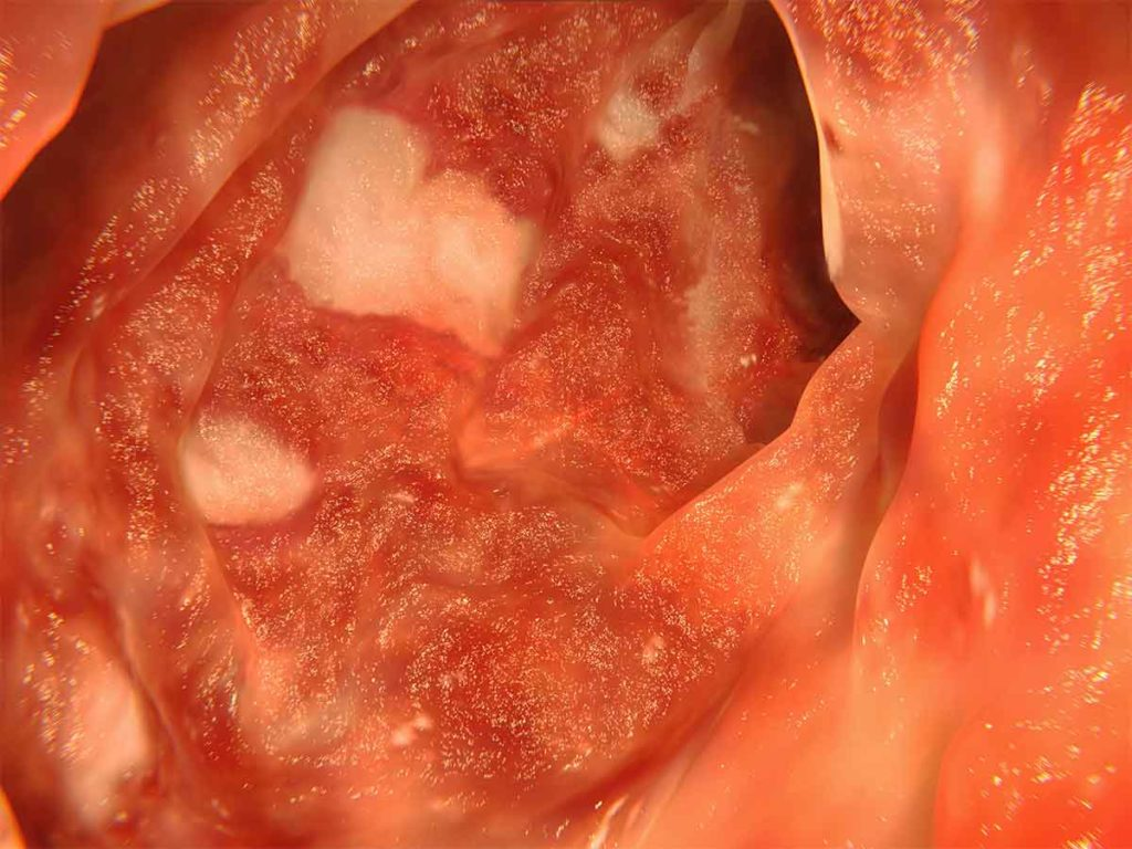 Artwork showing an endoscopic image of the colon affected by ulcerative colitis.