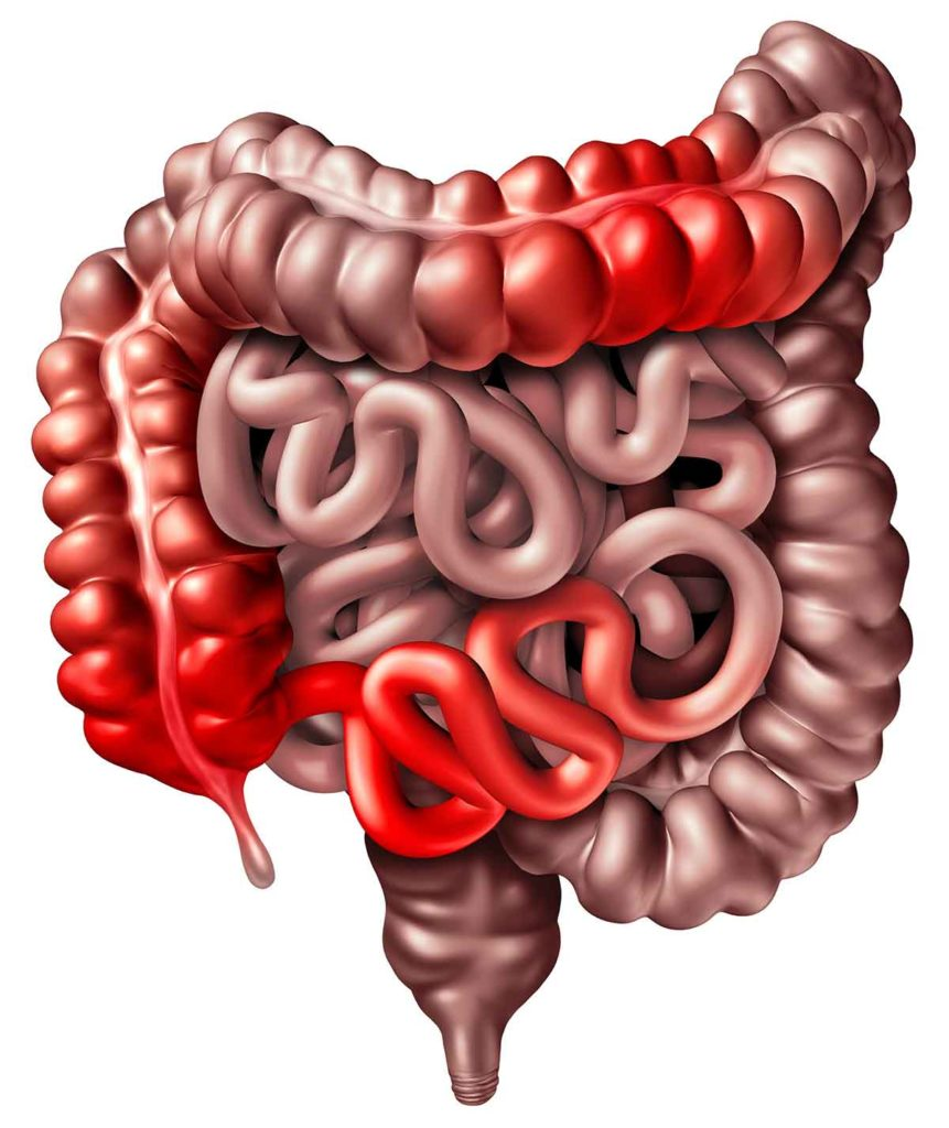 Illustration of inflammation due to inflammatory bowel disease causing obstruction inside the intestinal tract.