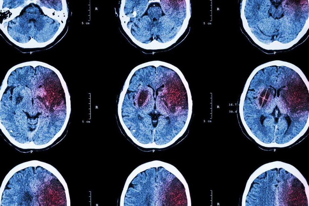 CT scan of brain showing ischemic stroke
